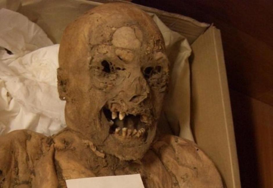 Mađarska mumija na kojoj su proučavali rak | Author: Atlas Obscura