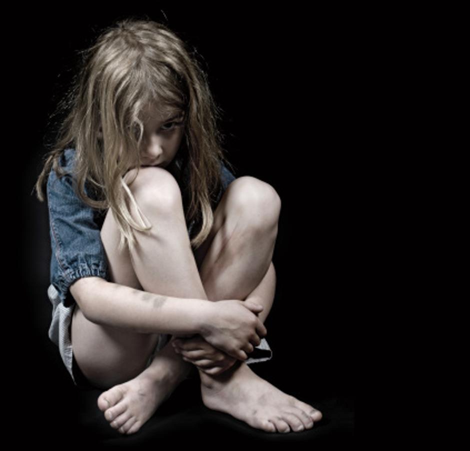 Uplašena djevojčica | Author: Thinkstock