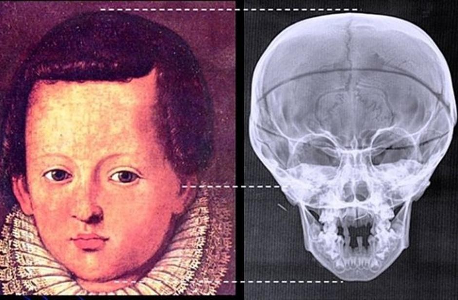 Rekonstruirani ostaci dječaja iz tajne Medici grobnice | Author: Seeker