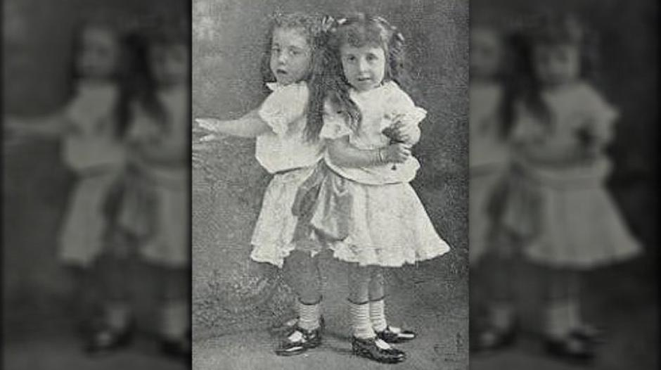 Daisy i Violet Hilton | Author: Wikimedia Commons