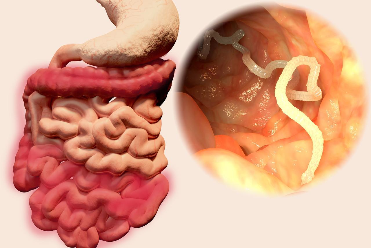 parazita és crijevima covjeka ili zivotinja)