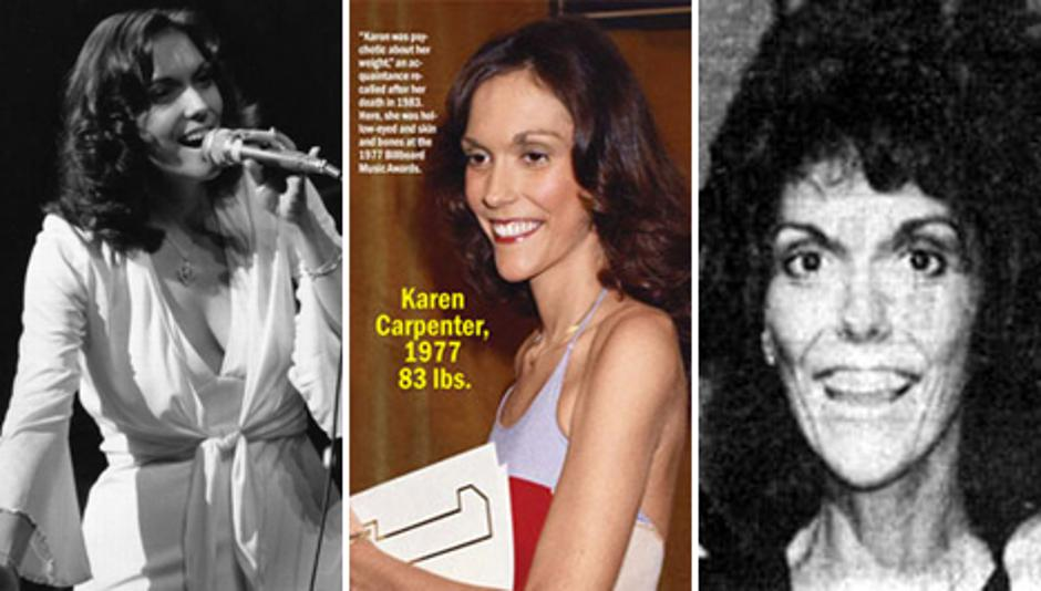 Pjevačica Karen Carpenter | Author: Pinterest