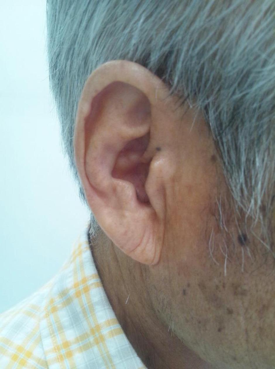 Frankov znak na ušima | Author: Wikimedia Commons